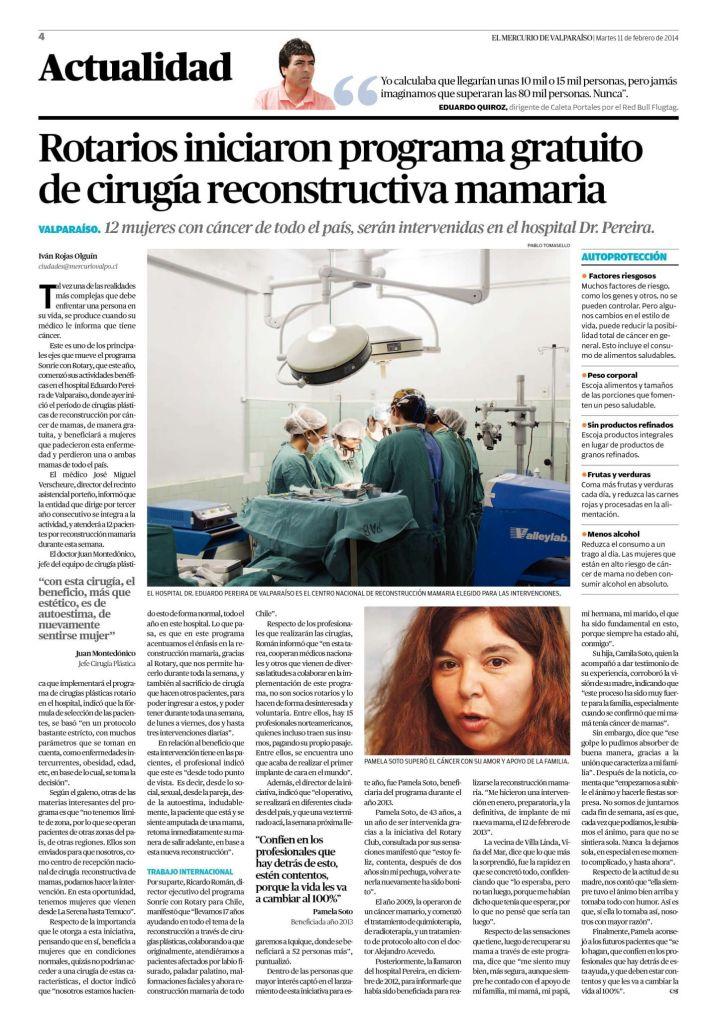 Cirugia Labio fisurado